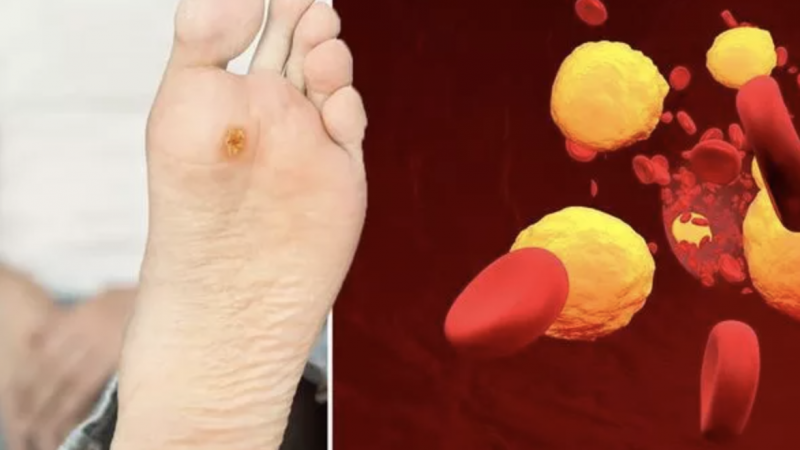 High cholesterol symptoms: Three serious warning signs in your feet – what to look for